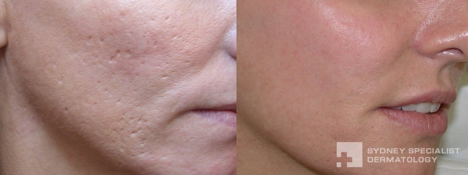 Conditions And Treatments Acne Scars And Their Treatment Sydney Specialist Dermatology