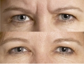 Muscle-relaxing anti-wrinkle injections