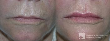 Filler to lip lines