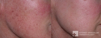 Photo-Fraxional Peel laser