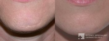 Subcision and filler to accident scar