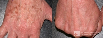 Fraxel Peel laser for pigmented lesions