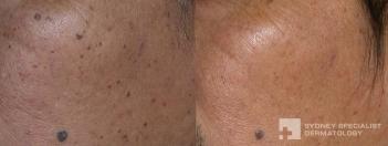 Fine-wire diathermy for dermatosis papulosa nigra