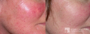 IPL for rosacea