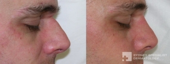 Non-surgical rhinoplasty - filler to straighten nose