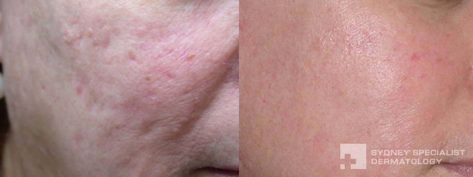Acne And Acne Scarring Before And After Photos Sydney Specialist Dermatology